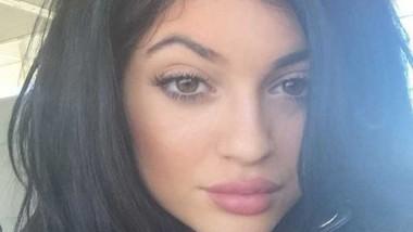 El reto 'labios Kylie Jenner', la última locura viral